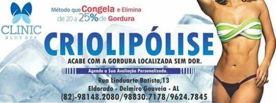Conheça a criolipólise nova forma de remover gorduras localizadas, agora em Delmiro Gouveia